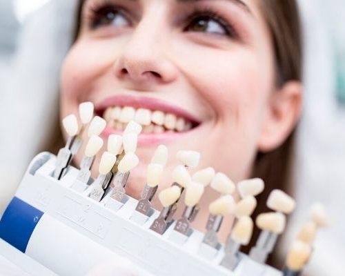 carillas dentales qué son y para qué sirven